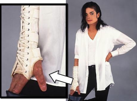 vitiligo2 MJ